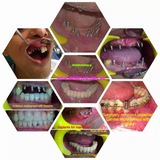 KRISHNA SAI DENTAL IMPLANT & LASER CENTRE