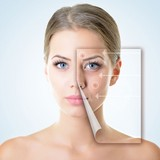 acne scar treatment - Acne Scar Removal Treatment in Delhi