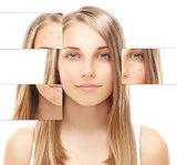 buy acne medication online - Buy Prescription Acne Medication in Canada