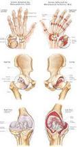 Arthritis Guide
