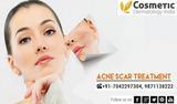 acne scar treatment - Laser Acne Scar Treatment In Delhi India